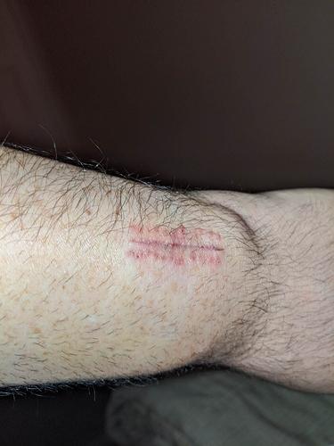 StitchesRemoved1