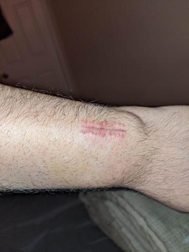 StitchesRemoved2