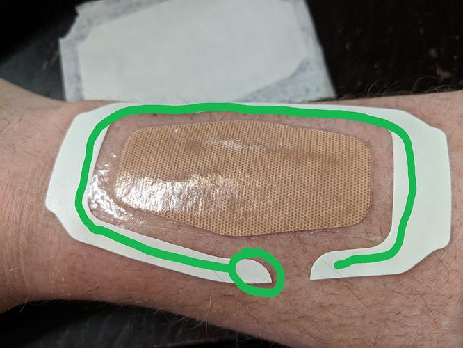 lido-patch-kit-bandage-on2