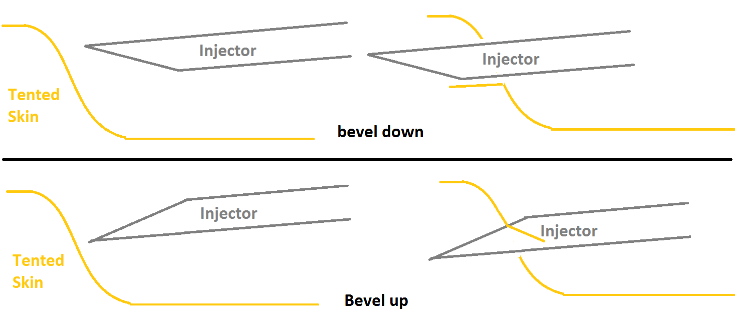 bevel%20up-down