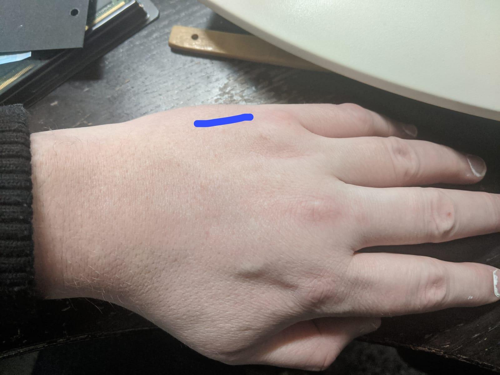 hand-pinky