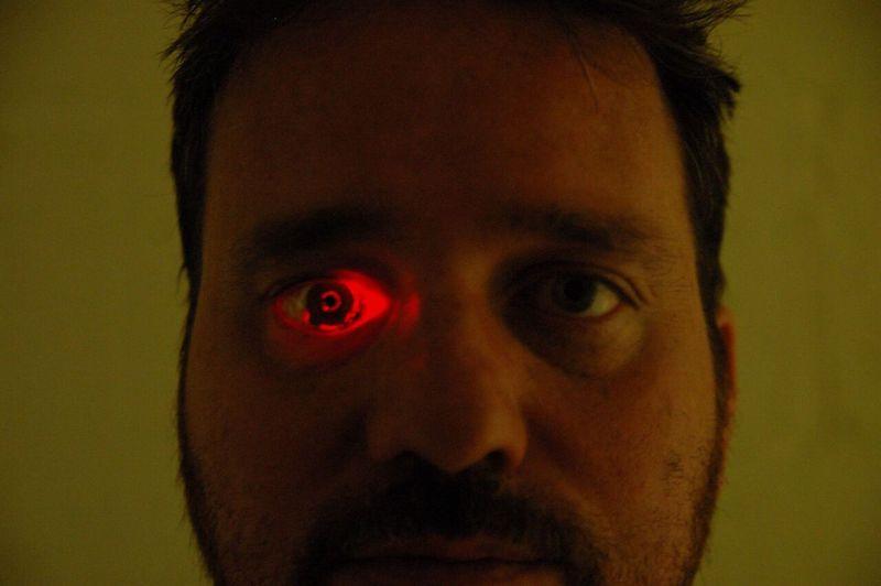eyeborg-rob-spence